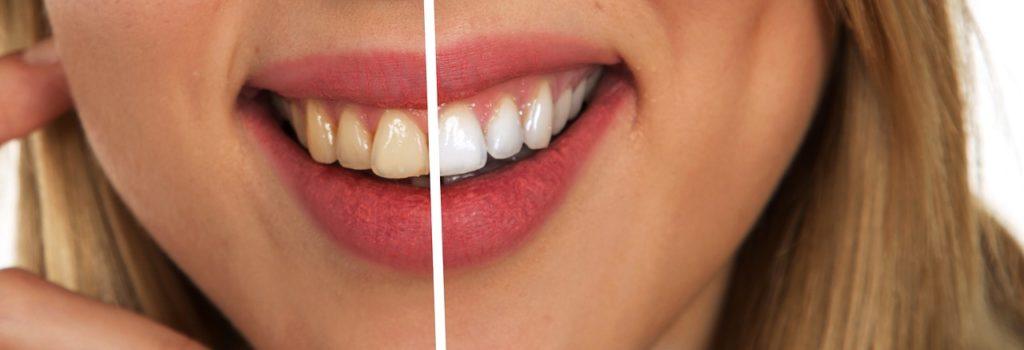 Katy Texas Teeth Whitening