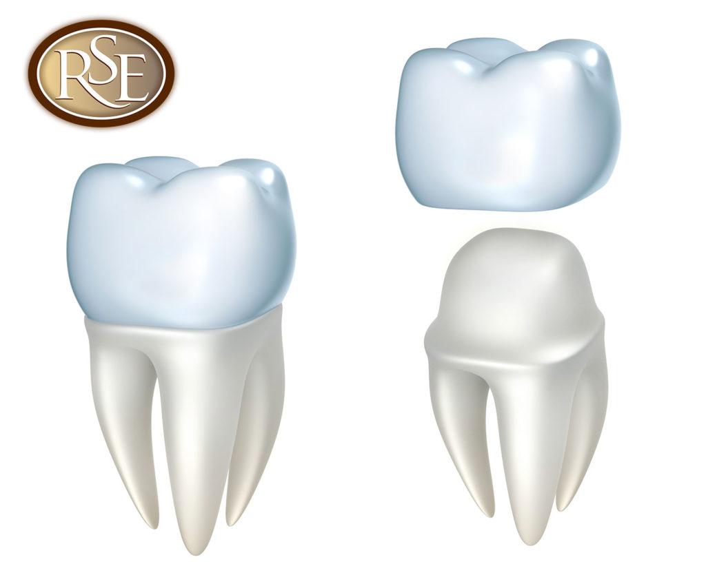 Dental Crowns in Katy Texas